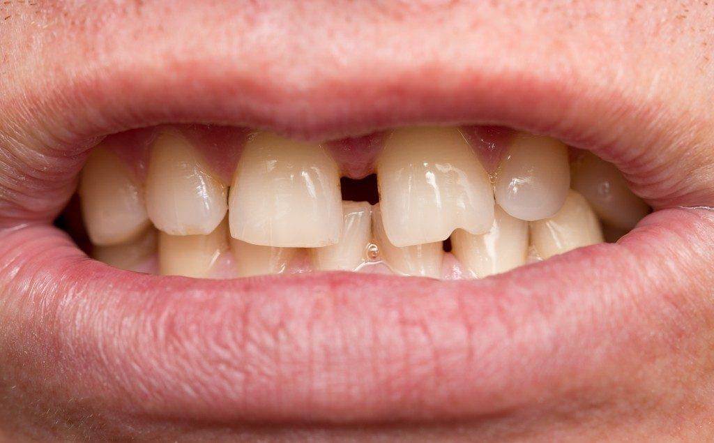 Crooked Teeth Myths
