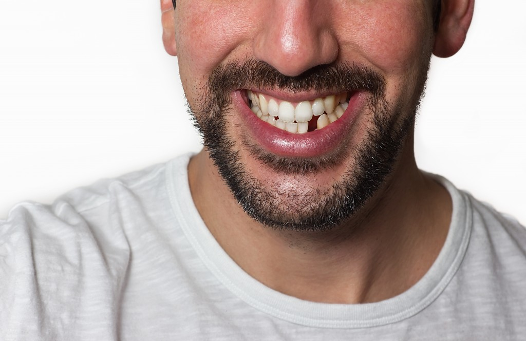 man smiling with a missing tooth