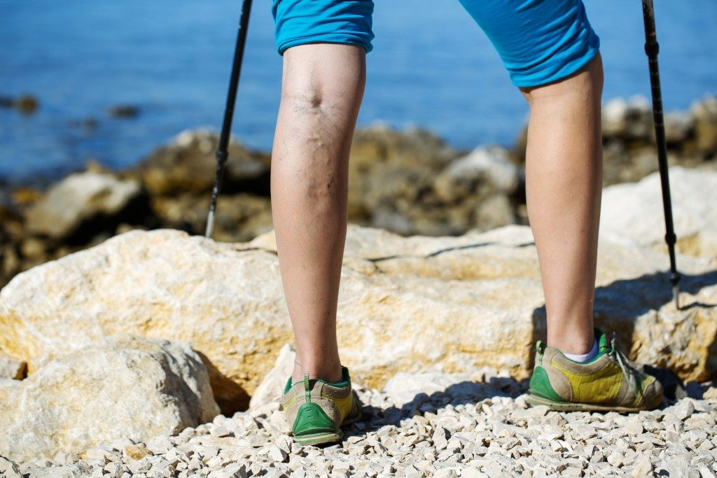 hiker athlete with Vein Thromboembolism
