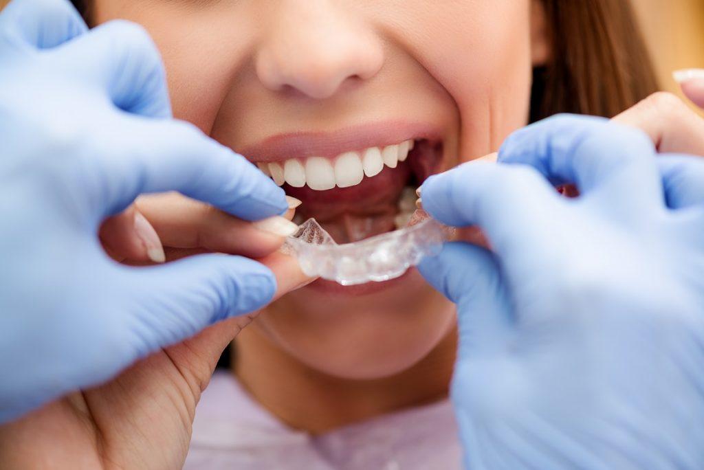 installing clear braces