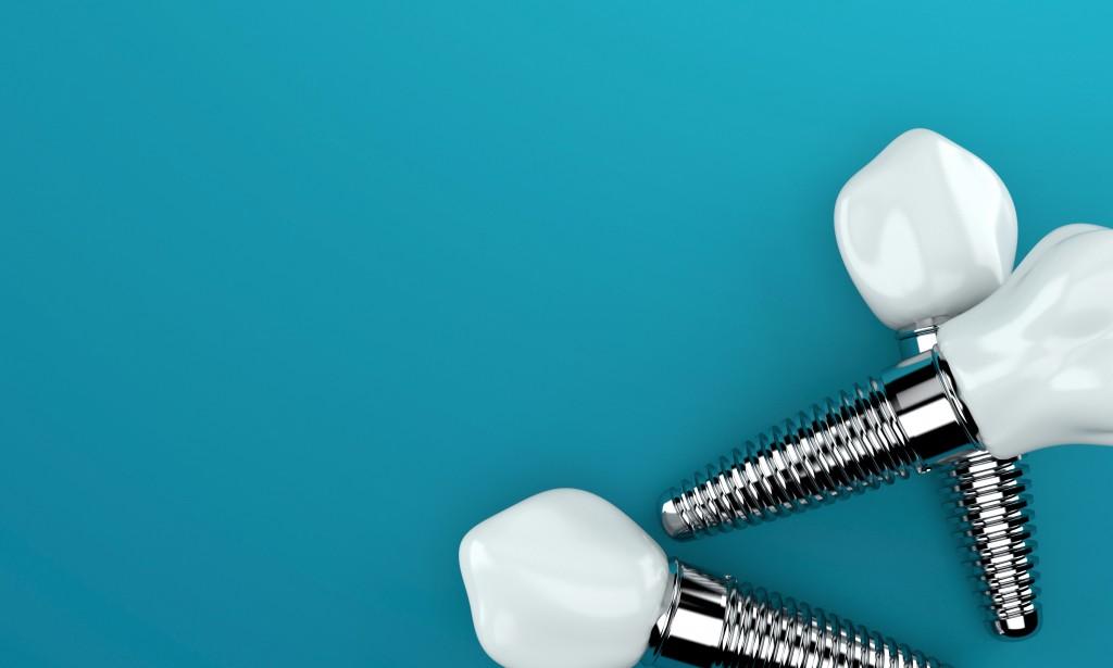 Screw type dental implants