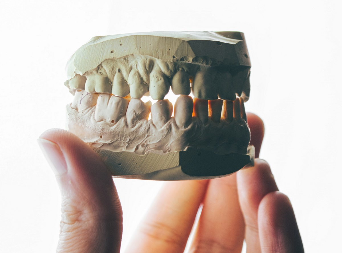 mold of teeth