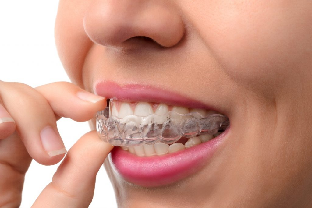 woman wearing braces