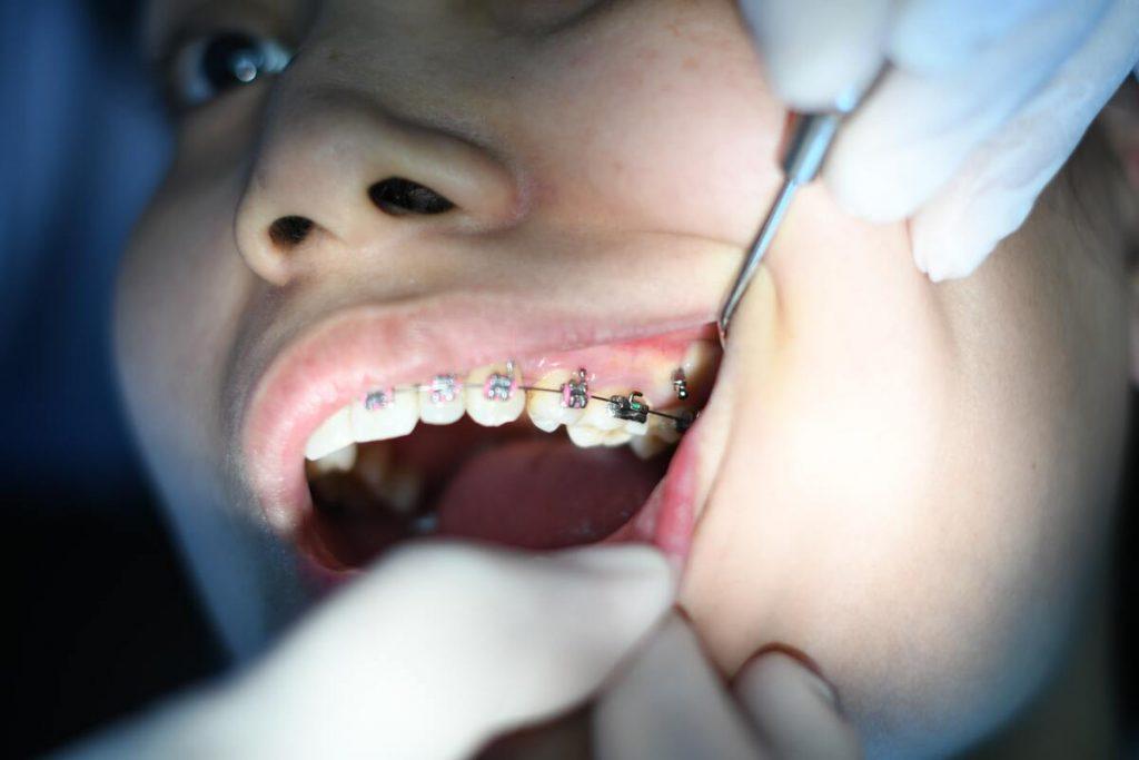brace procedure