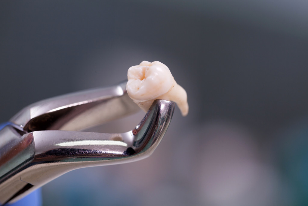 removed wisdom tooth